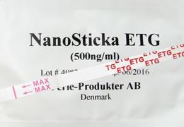 Alkoholtest ETG metabolit